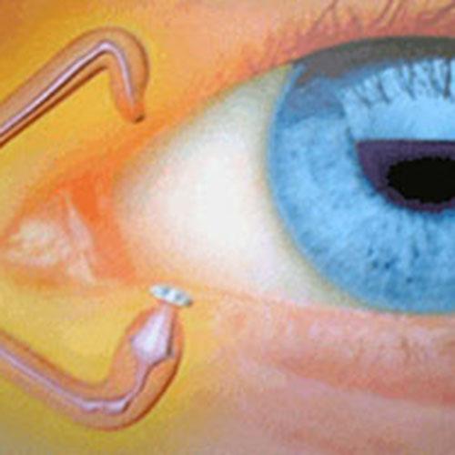 治療一覧|涙点プラグ、白内障|的場眼科